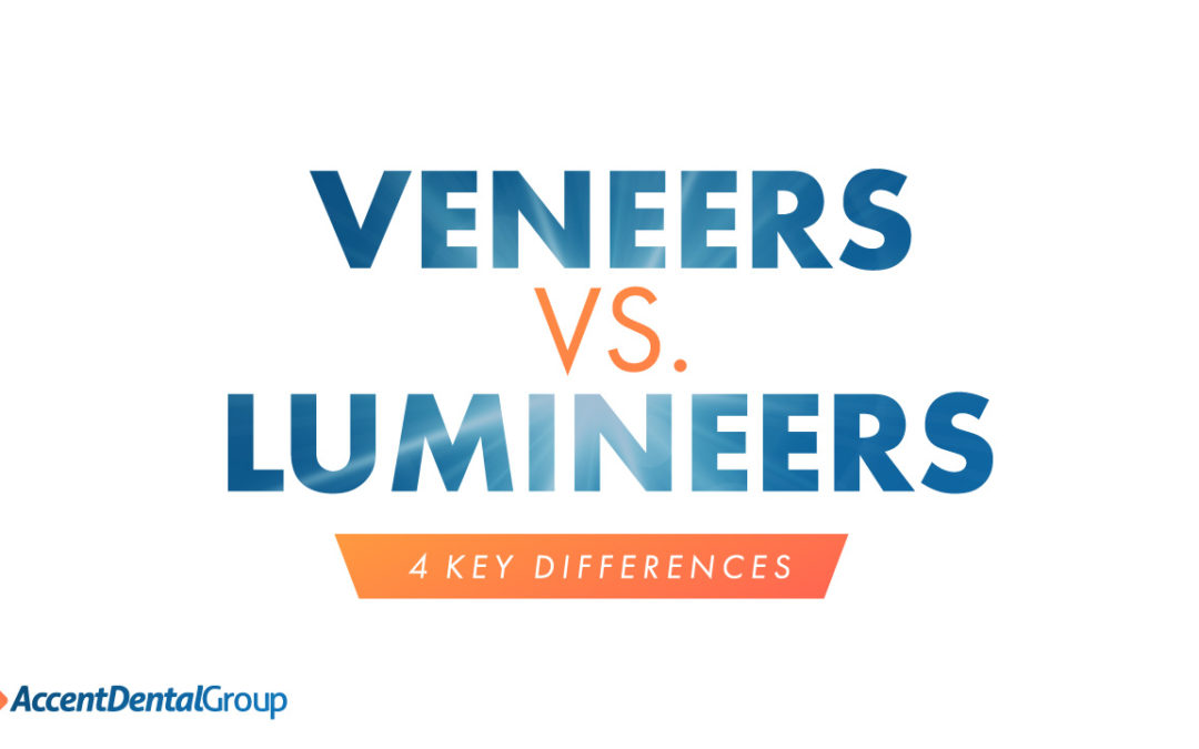 Lumineers Vs. Veneers: 4 Key Differences